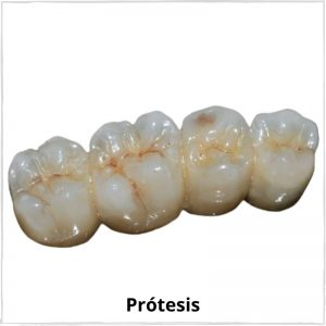 Prótesis